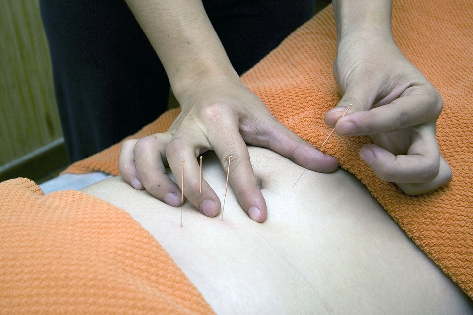 Foto van acupunctuur
