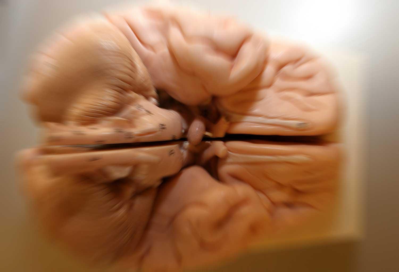 alzheimer-hersenen
