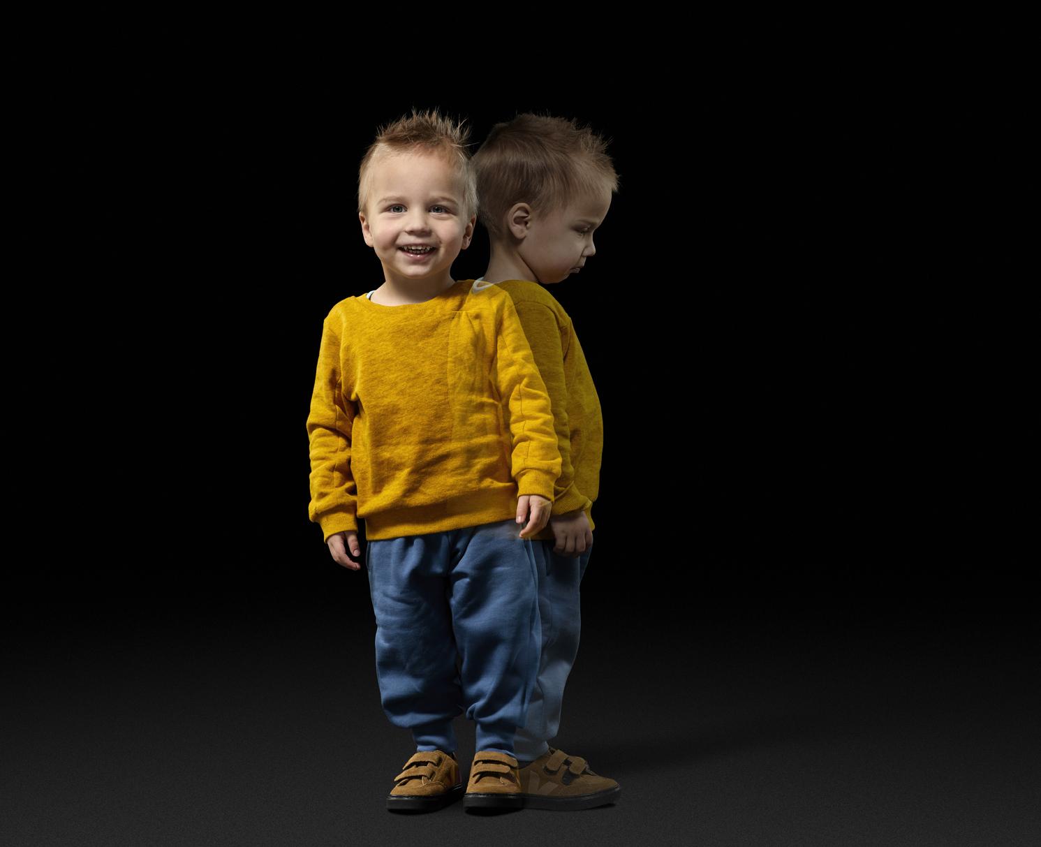 Onzichtbaar leed bij kinderen met een nierziekte verdient aandacht