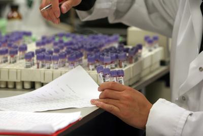 Foto van reageerbuis laboratorium | Archief EHF