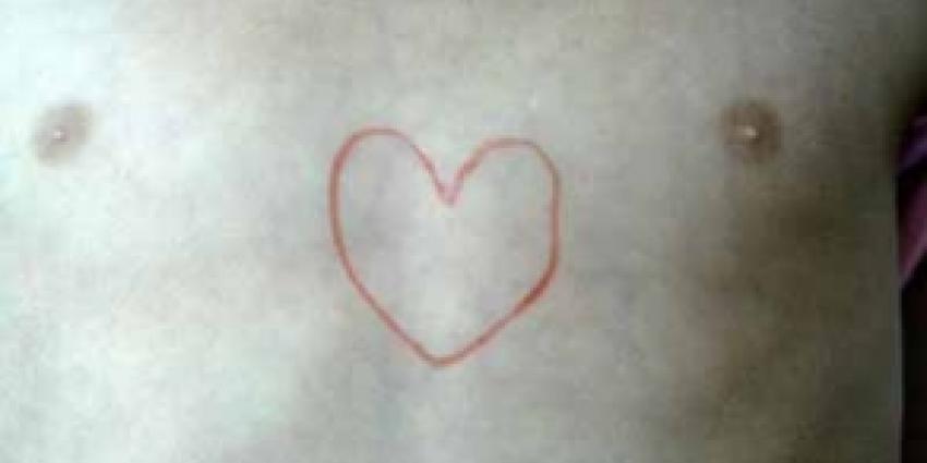 Vijftig procent minder doden door hart- en vaatziekten