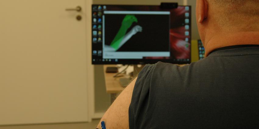 UMCG onderzoekt effect behandeling met virtual reality voor fantoompijn