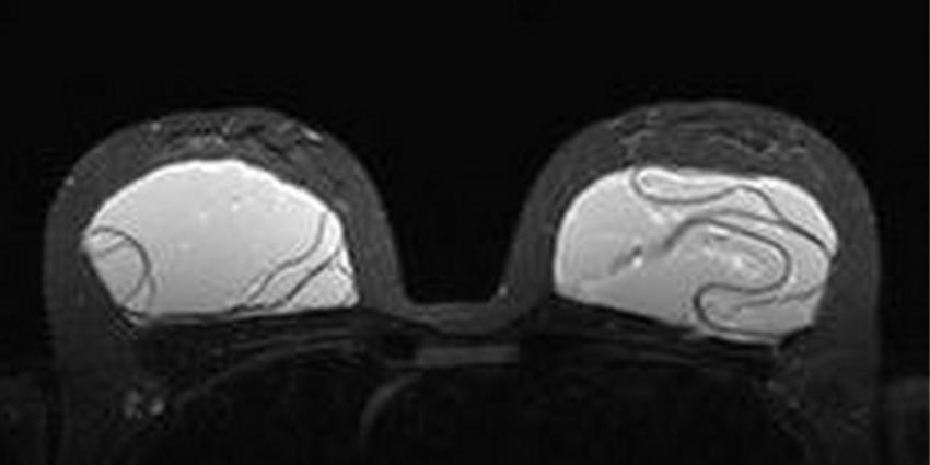 Foto van borst implantaten | VUmc