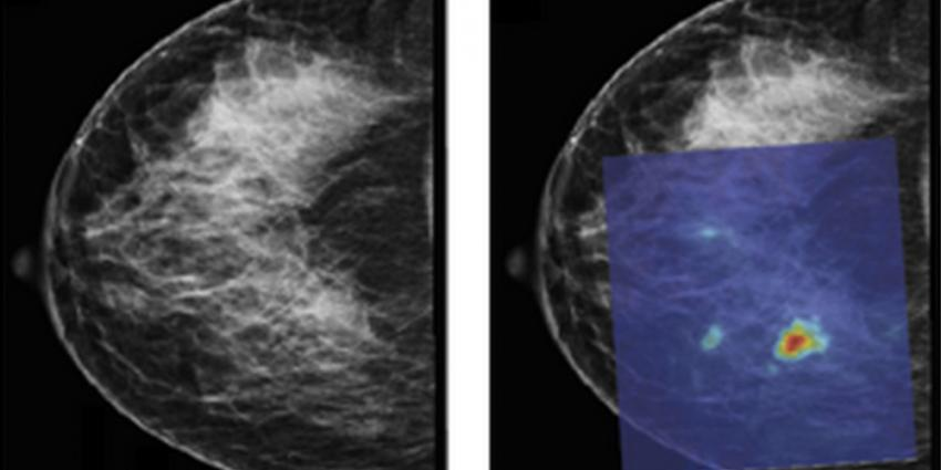 Foto van PAMmografie borstkanker | Universiteit Twente