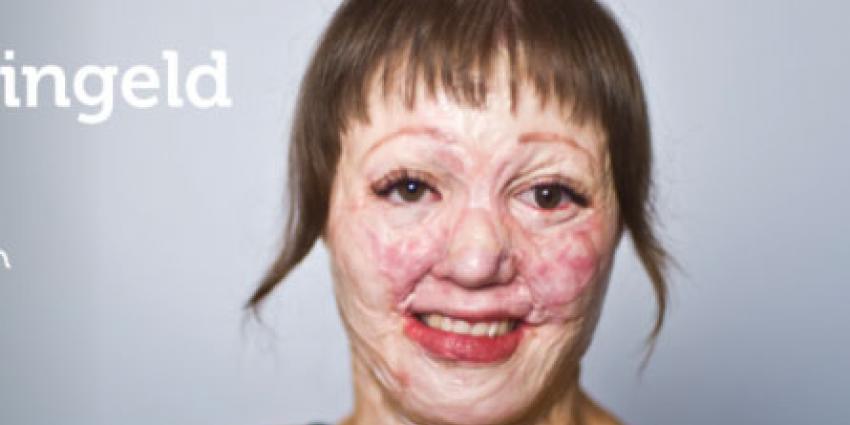 'Facebook weigert advertentie brandwondenstichting met verminkt gezicht'