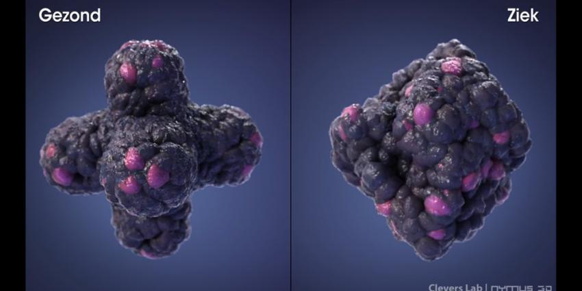 Rekenmodel helpt onnodige operaties bij darmkanker te voorkomen