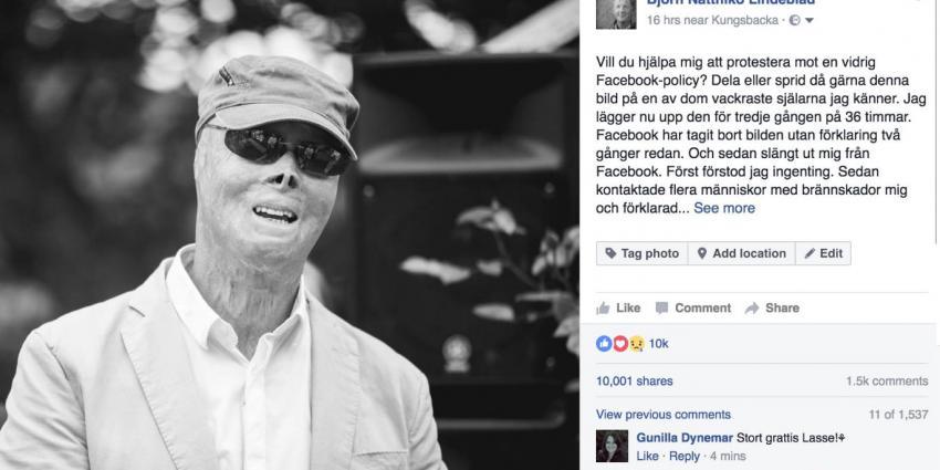 Facebook weer de fout in met brandwondenslachtoffer