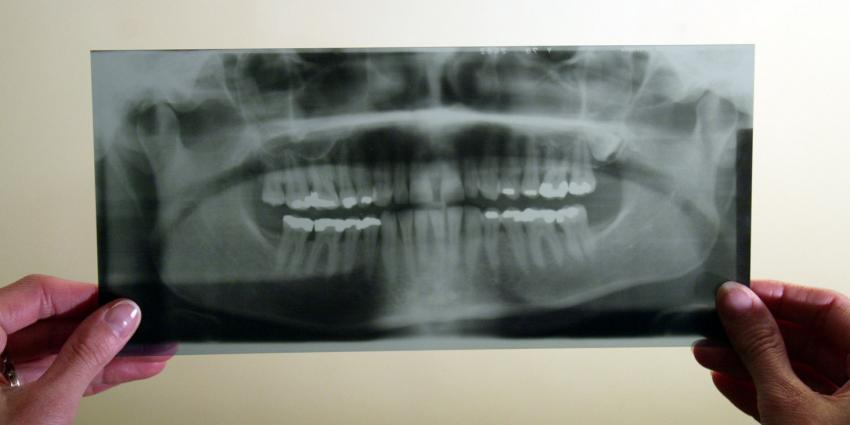 Meer ouderen hebben extra hulp nodig bij mondverzorging
