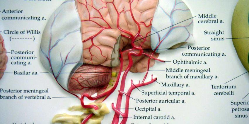 Speciale 'pleister' voorkomt weglekken hersenvocht na operatie