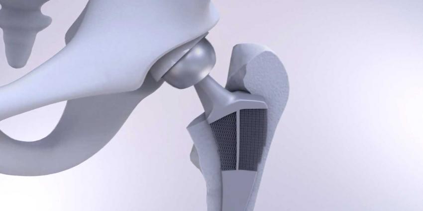Loslatende heupimplantaten over met nieuw 3D geprint meta-implantaat