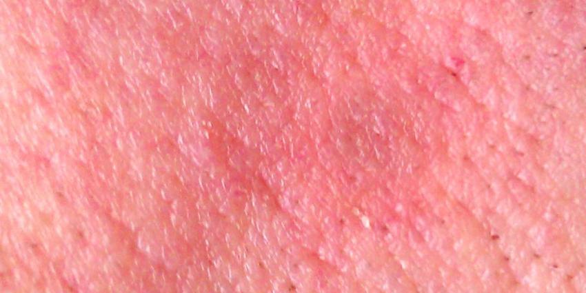 huid-rood-vlekken
