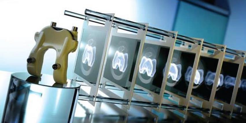 3D-print, van, de, knie, voor, gepersonaliseerde, operatie