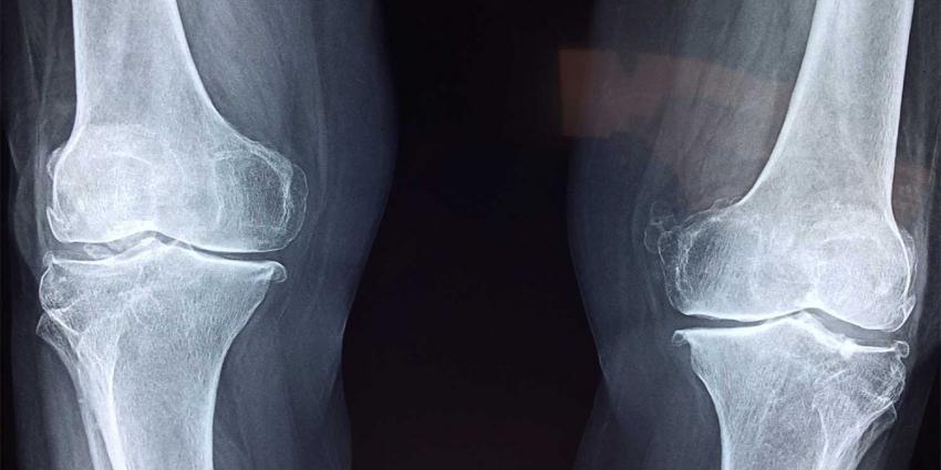 Injecteerbare pleister bij knieartrose