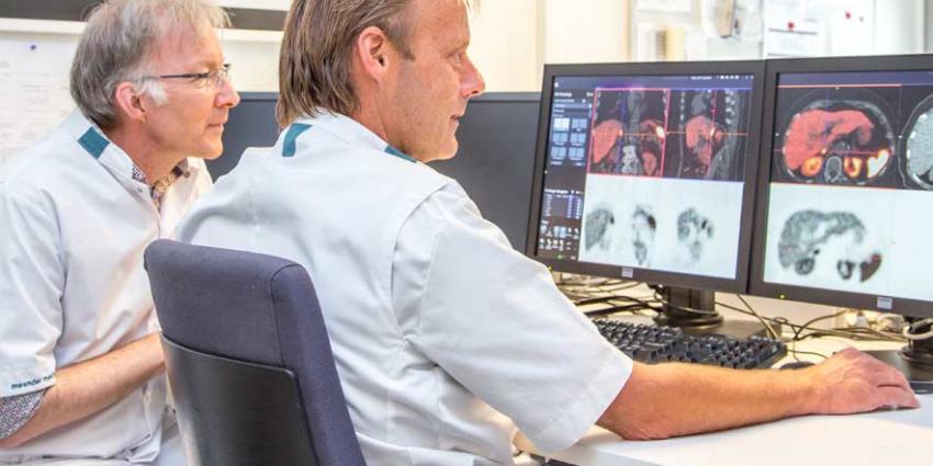 Hormoonproducerende tumoren beter in beeld dankzij nieuwe tracer