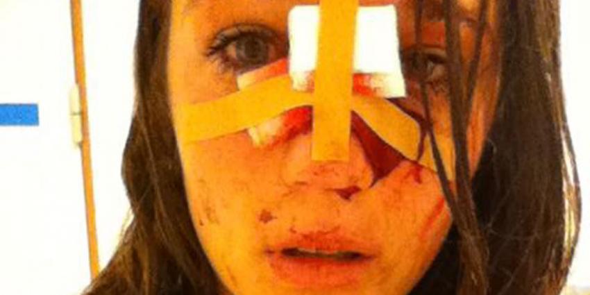foto van gewonde vrouw door fles | Schuurmans