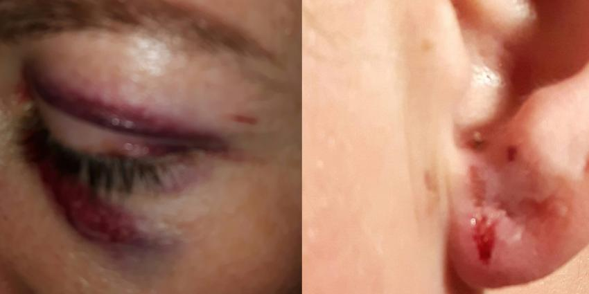 Mishandelde lesbische vrouwen voelen zich in de kou gezet door politie
