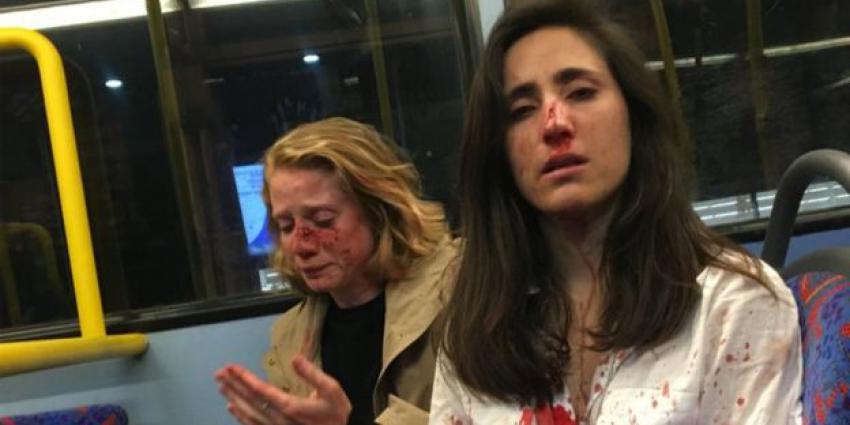 Foto van mishandelde vrouwen