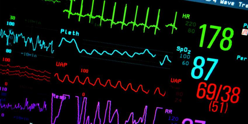 monitor-hartslag