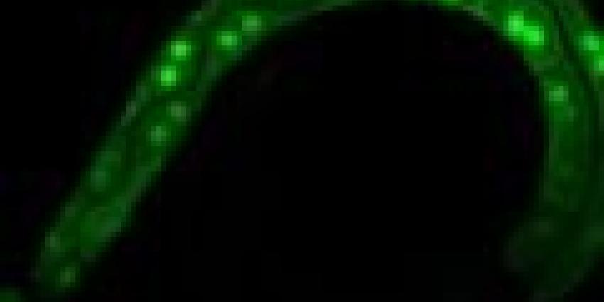NWO-onderzoekers ontdekken sterke rem op celdeling