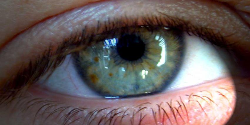 foto van oog