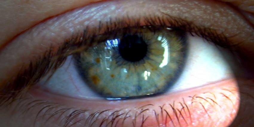 Meer slachtoffers met oogletsel naar ziekenhuis
