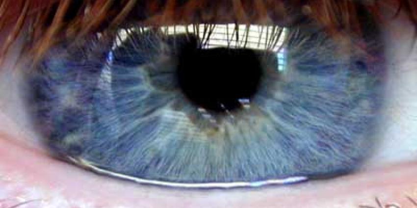 Vijf miljoen Amerikaanse dollars voor oogonderzoek Radboudumc