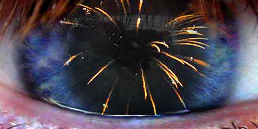 Foto van vuurwerk en oog | Archief EHF