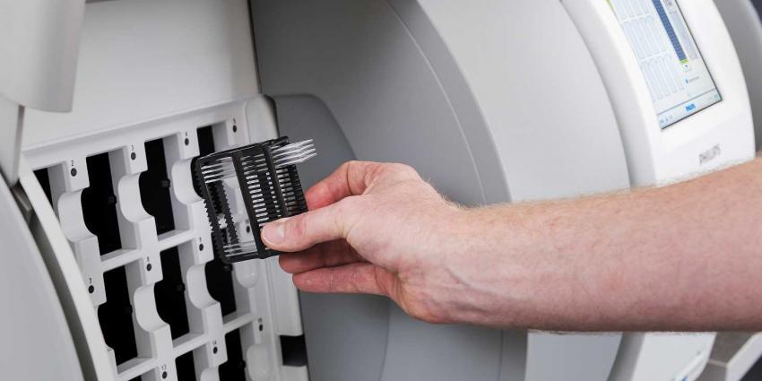 Patholoog stapt van microscoop over op digitale beelden voor diagnose