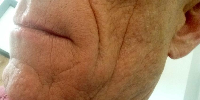 RIVM: tijdelijke rimpelvullers zijn niet schadelijk