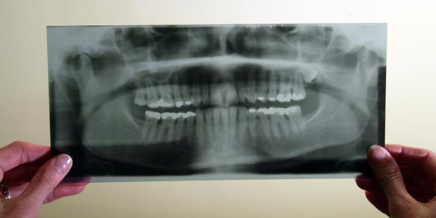 IGZ licht mondzorgsector door betreffende regels voor röntgenfoto's