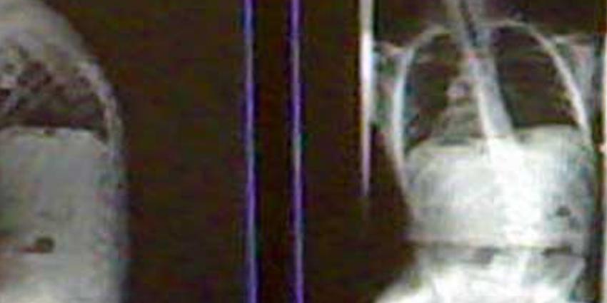 Onderzoek wijst uit: Longkankerscreening met CT voorkomt sterfgevallen