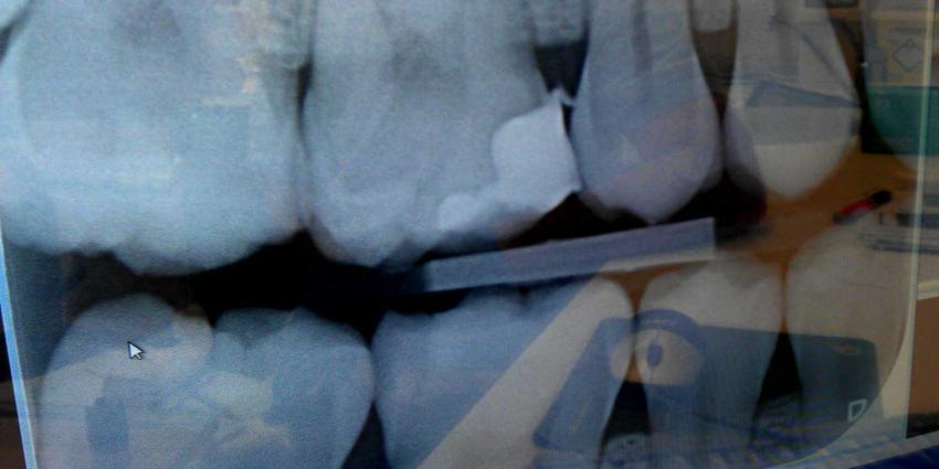 Tandartsen moeten regels röntgenfoto's kinderen beter naleven