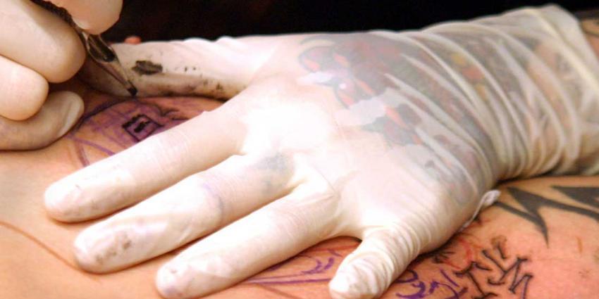 Laseren kan straks alleen nog maar bij arts en huidtherapeut