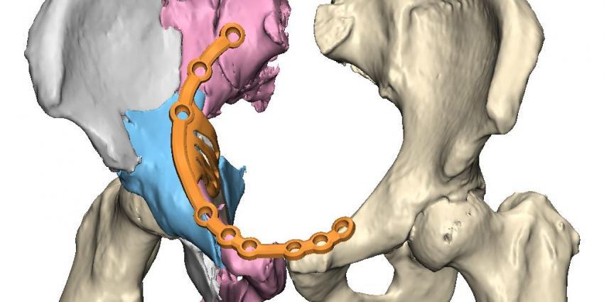 UMCG voert eerste bekkenreconstructie met 3D-technologie uit