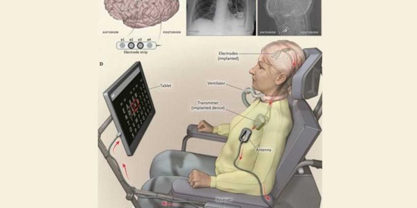 Verlamde ALS-patiënt stuurt spraakcomputer aan met haar gedachten