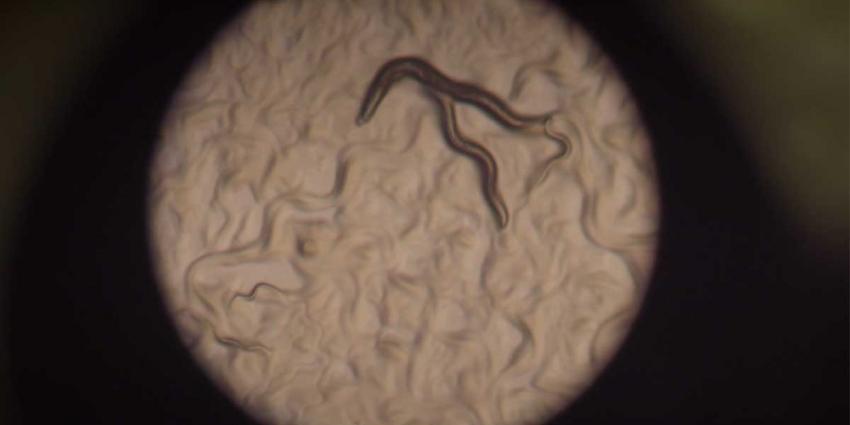Laboratoriumwormen geven nieuw inzicht invloed dieet op veroudering