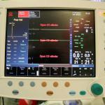 apparatuur-ziekenhuis