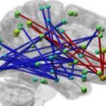 ADHD-medicijn heeft andere reactie op hersens gezond persoon dan verwacht
