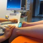 Foto van fysiotherapie | Archief EHF