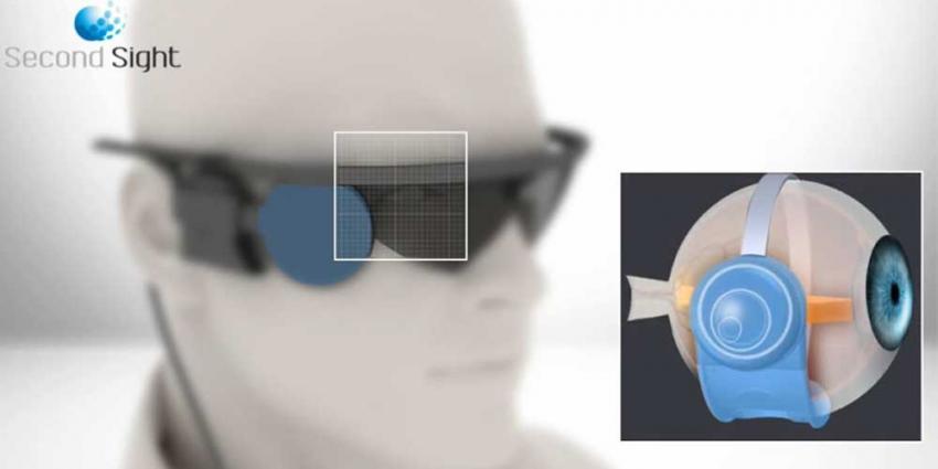 Foto van oog blind bril chip   Oogziekenhuis Zonnestraal