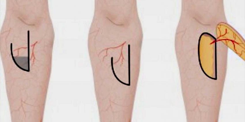 Nieuwe operatietechniek helpt tegen 'samentrekken' litteken door brandwond