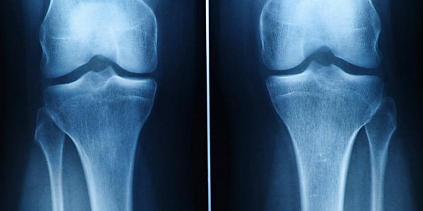 Hoop voor artrosepatiënten, UT maakt uit stamcellen blijvend kraakbeen