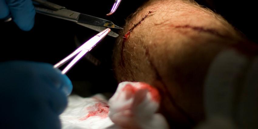 Vorming littekens af te remmen door eiwit te blokkeren