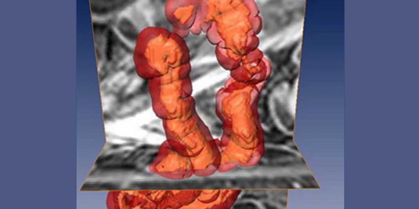 Beter zicht op de ziekte van Crohn via bewerkte MRI-beelden