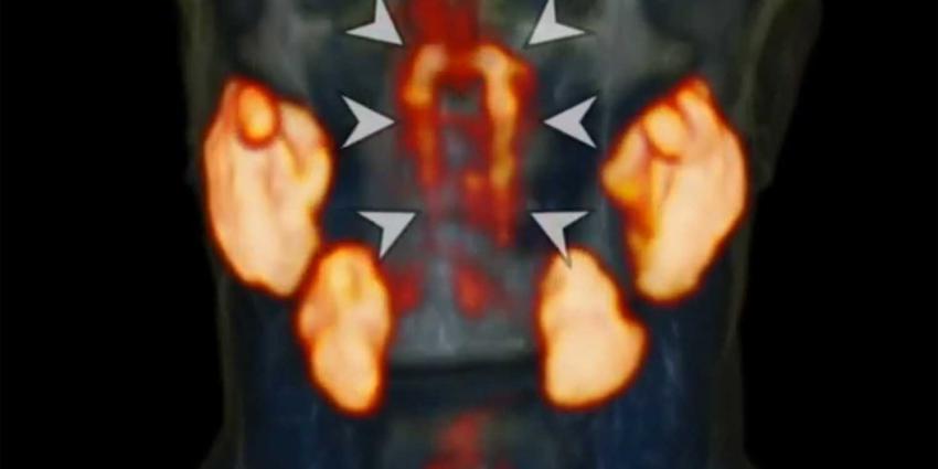speekselklieren
