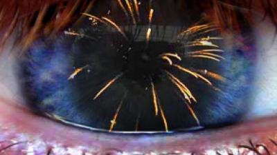 Foto van vuurwerk in oog | Archief FBF.nl