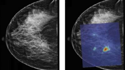 Foto van PAMmografie borstkanker   Universiteit Twente