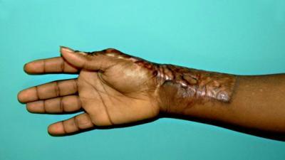 Wiskunde kan helpen om littekens bij brandwonden te verminderen