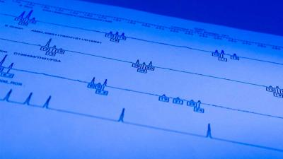 10.000e internationale DNA-match gerapporteerd