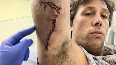 Bioloog Freek Vonk heeft nog geen gevoel in huid arm na aanval haai